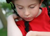 Cuts and Scrapes: How do I Know if my Child Needs Stitches?